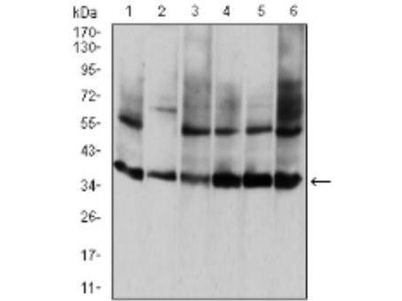 Western Blotting (WB) image for anti-Annexin A5 (ANXA5) antibody (ABIN4280832)