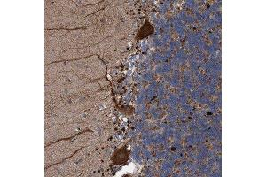 Immunohistochemistry (Paraffin-embedded Sections) (IHC (p)) image for anti-Bardet-Biedl Syndrome 9 (BBS9) antibody (ABIN4283230)