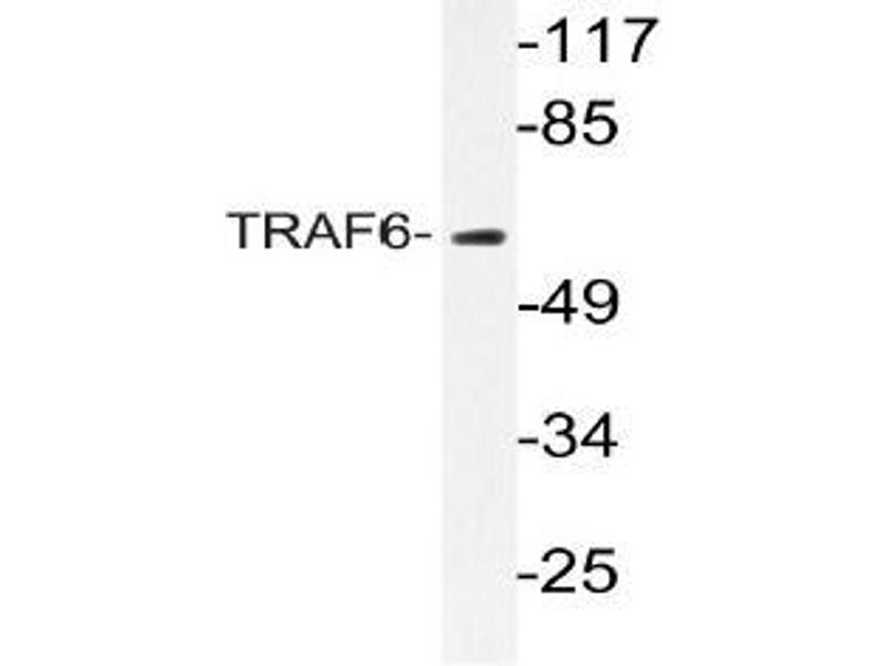Western Blotting (WB) image for anti-TRAF6 antibody (TNF Receptor-Associated Factor 6) (ABIN498675)