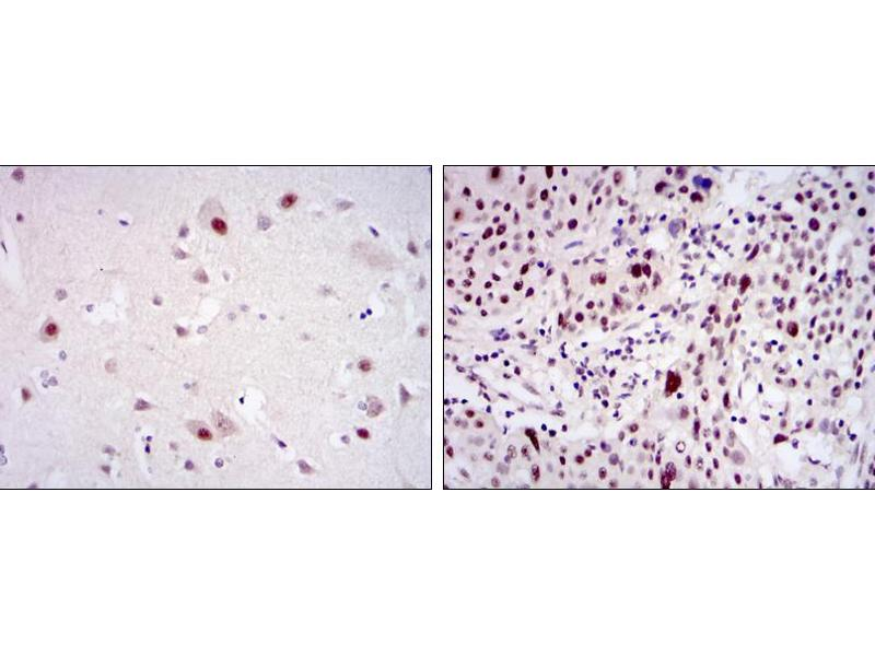 Immunohistochemistry (IHC) image for anti-CDK9 antibody (Cyclin-Dependent Kinase 9) (ABIN969042)