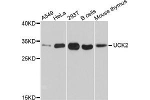 Image no. 1 for anti-Uridine-Cytidine Kinase 2 (UCK2) antibody (ABIN6567028)