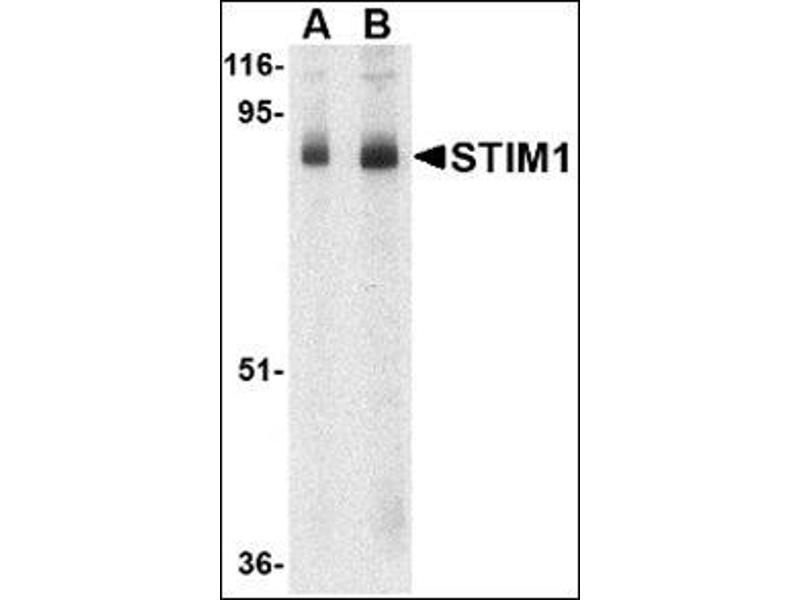 Western Blotting (WB) image for anti-Stromal Interaction Molecule 1 (STIM1) (C-Term) antibody (ABIN500827)
