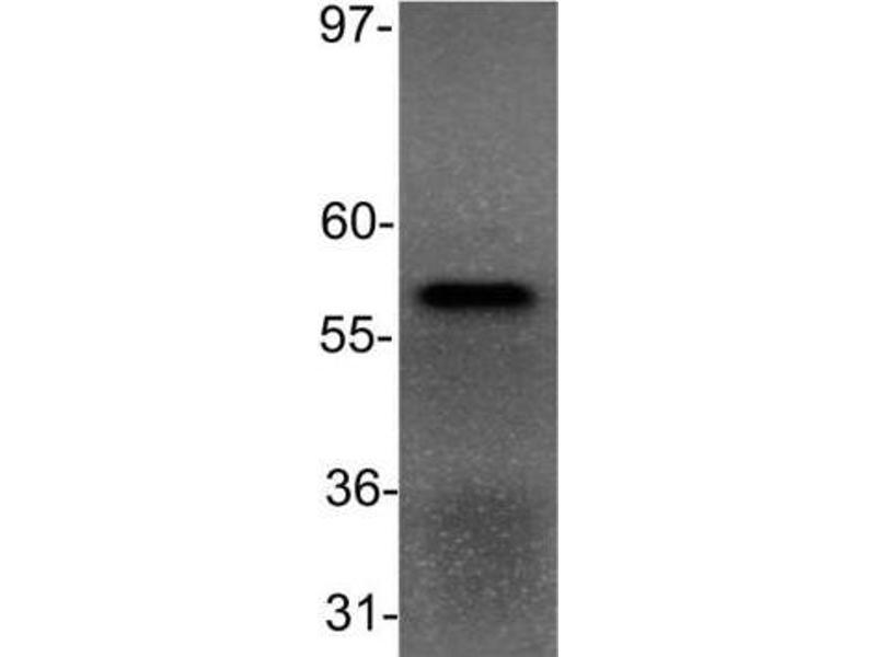 Western Blotting (WB) image for anti-Peroxisome Proliferator-Activated Receptor alpha (PPARA) antibody (ABIN152696)