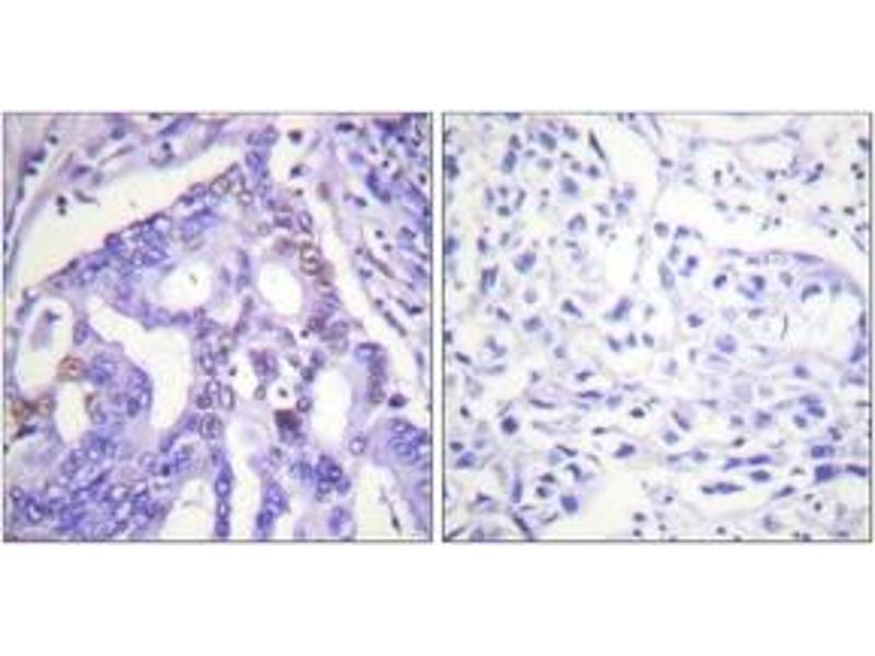Immunohistochemistry (IHC) image for anti-PIAS4 Antikörper (Protein Inhibitor of Activated STAT, 4) (ABIN1533435)