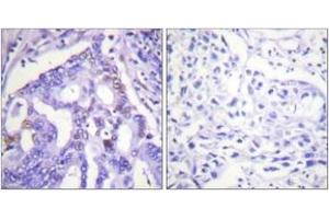 Immunohistochemistry (IHC) image for anti-Protein Inhibitor of Activated STAT, 4 (PIAS4) (AA 451-500) antibody (ABIN1533435)