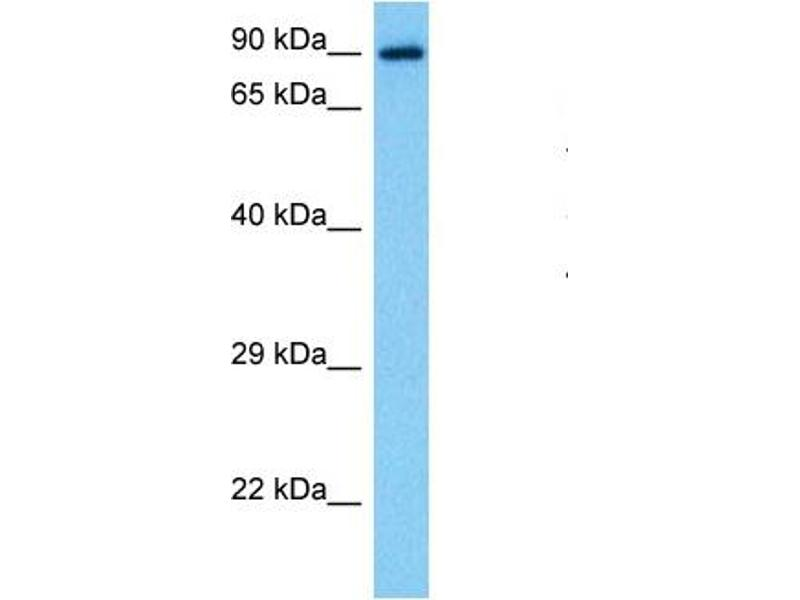 Western Blotting (WB) image for anti-Signal Transducer and Activator of Transcription 1, 91kDa (STAT1) (N-Term) antibody (ABIN2780843)