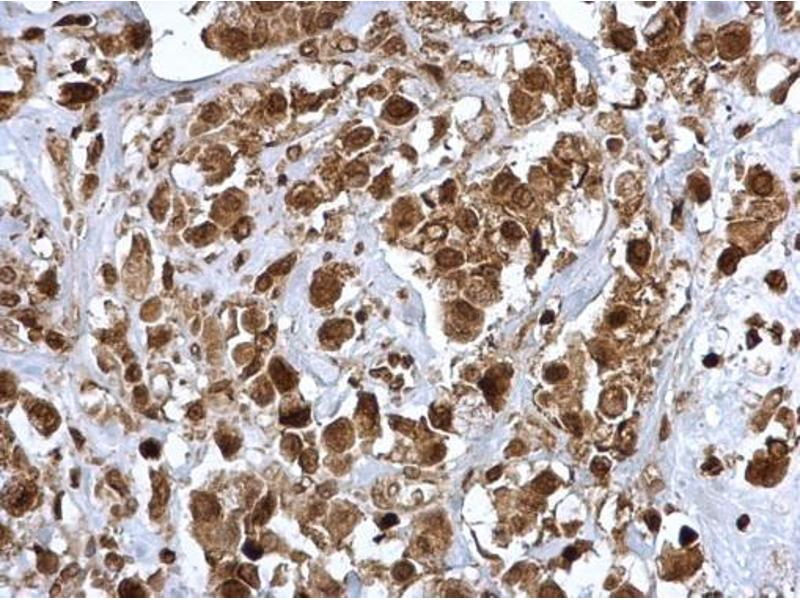 Immunohistochemistry (IHC) image for anti-Janus Kinase 2 (JAK2) (N-Term) antibody (ABIN2854944)