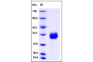 Image no. 1 for Coiled-Coil Domain Containing 134 (CCDC134) (AA 1-229) protein (His tag) (ABIN2005509)
