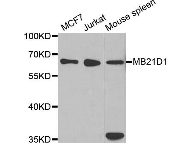 Image no. 2 for anti-Chromosome 6 Open Reading Frame 150 (C6orf150) antibody (ABIN6568305)