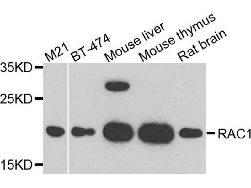 Western Blotting (WB) image for anti-RAC1 antibody (ABIN2737443)