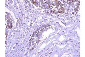 Immunohistochemistry (Paraffin-embedded Sections) (IHC (p)) image for anti-Exocyst Complex Component 1 (EXOC1) (C-Term) antibody (ABIN4352412)