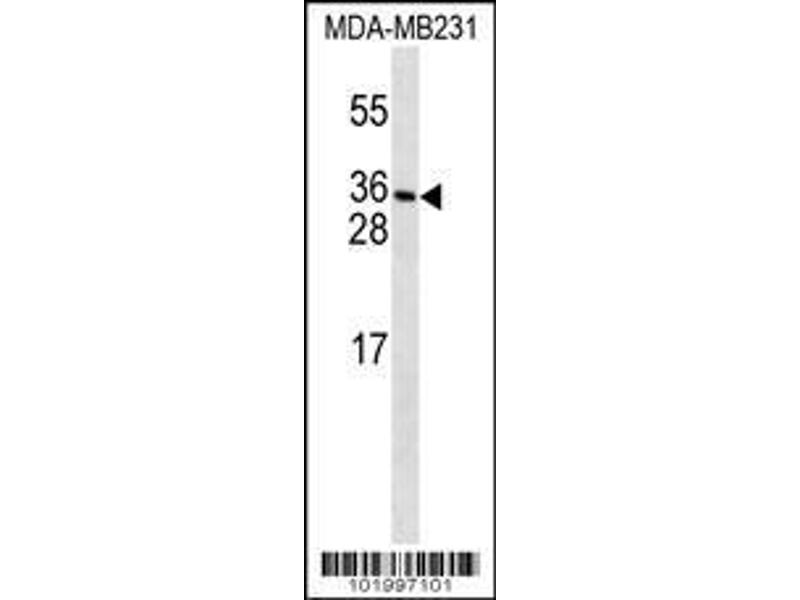 Western Blotting (WB) image for anti-PDGFC antibody (Platelet-Derived Growth Factor C) (N-Term) (ABIN2493024)