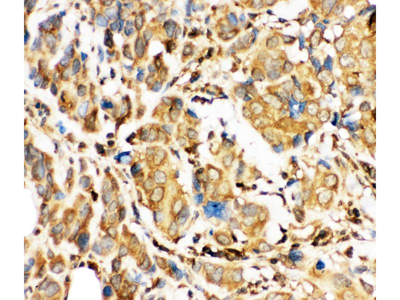 Immunohistochemistry (IHC) image for anti-BH3 Interacting Domain Death Agonist (BID) (AA 1-195) antibody (ABIN3042321)