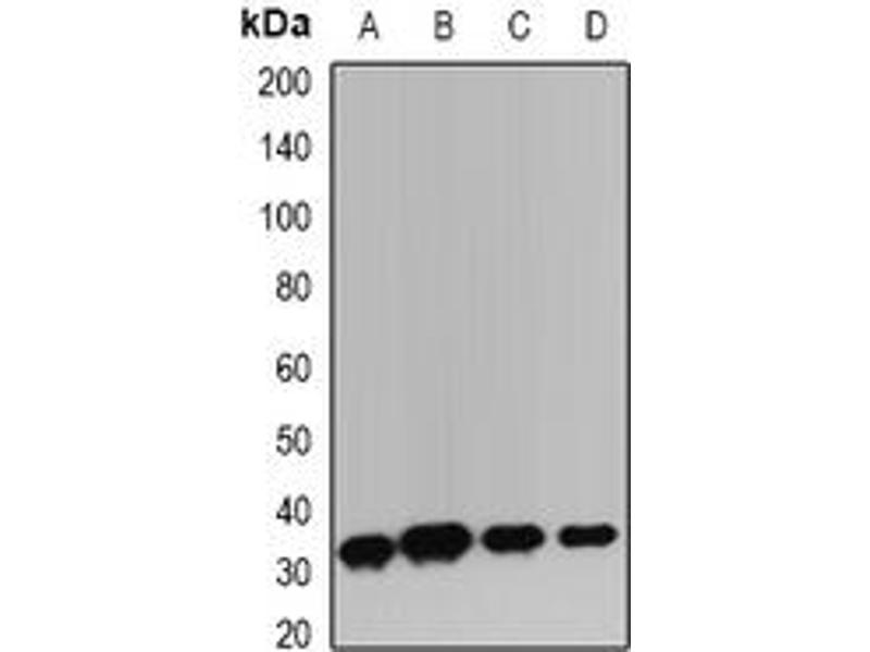 Image no. 2 for anti-Hepatitis A Virus Cellular Receptor 2 (HAVCR2) antibody (ABIN6043522)