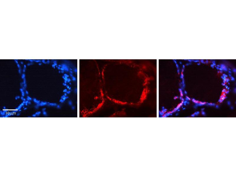 Immunohistochemistry (IHC) image for anti-Cadherin 1, Type 1, E-Cadherin (Epithelial) (CDH1) (Middle Region) antibody (ABIN2784498)