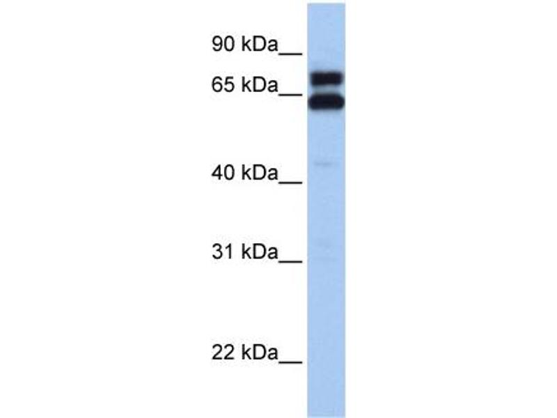 Western Blotting (WB) image for anti-Heat Shock 60kDa Protein 1 (Chaperonin) (HSPD1) (C-Term) antibody (ABIN2792215)