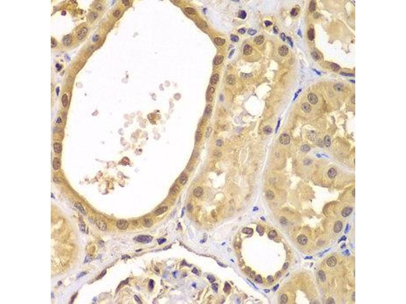Immunohistochemistry (IHC) image for anti-X-Linked Inhibitor of Apoptosis (XIAP) antibody (ABIN2560797)