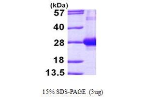 Image no. 1 for RAB7A, Member RAS Oncogene Family (RAB7A) (AA 1-207) protein (His tag) (ABIN667328)