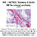 anti-ACTG2 anticorps (Actin, gamma 2, Smooth Muscle, Enteric)