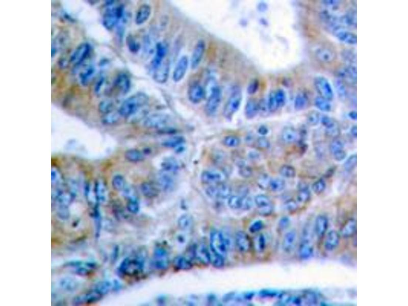 Immunohistochemistry (IHC) image for anti-BCL2L1 antibody (BCL2-Like 1) (pSer62) (ABIN2705584)