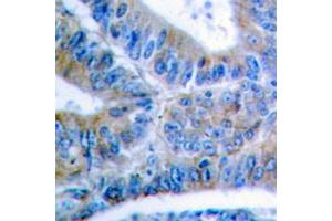 Immunohistochemistry (IHC) image for anti-BCL2-Like 1 (BCL2L1) (pSer62) antibody (ABIN2705584)