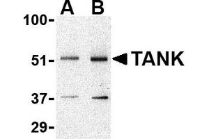 Western Blotting (WB) image for anti-TANK antibody (TRAF Family Member-Associated NFKB Activator) (N-Term) (ABIN2506309)