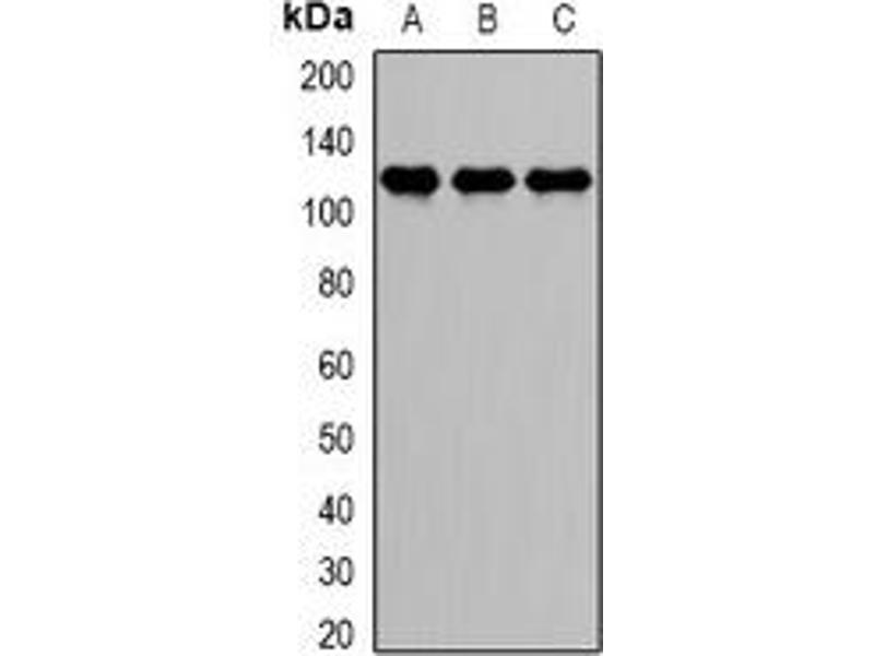 Western Blotting (WB) image for anti-DEAD (Asp-Glu-Ala-Asp) Box Polypeptide 58 (DDX58) antibody (ABIN3198029)