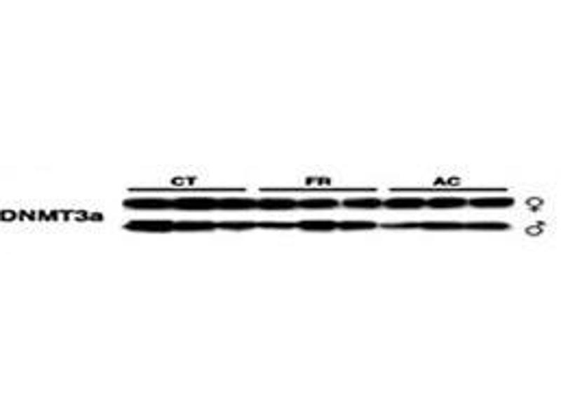 Western Blotting (WB) image for anti-DNA (Cytosine-5-)-Methyltransferase 3 alpha (DNMT3A) (AA 457-486) antibody (ABIN387881)