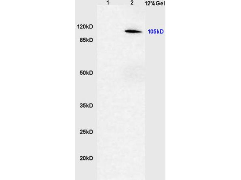 SDS-PAGE (SDS) image for anti-Cylindromatosis (Turban Tumor Syndrome) (CYLD) (AA 390-440), (pSer418) antibody (ABIN683833)