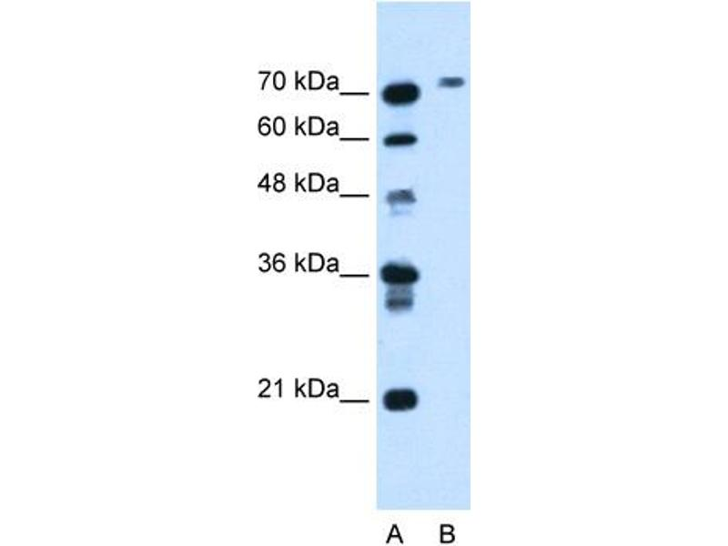 Western Blotting (WB) image for anti-Butyrylcholinesterase (BCHE) (N-Term) antibody (ABIN2781762)