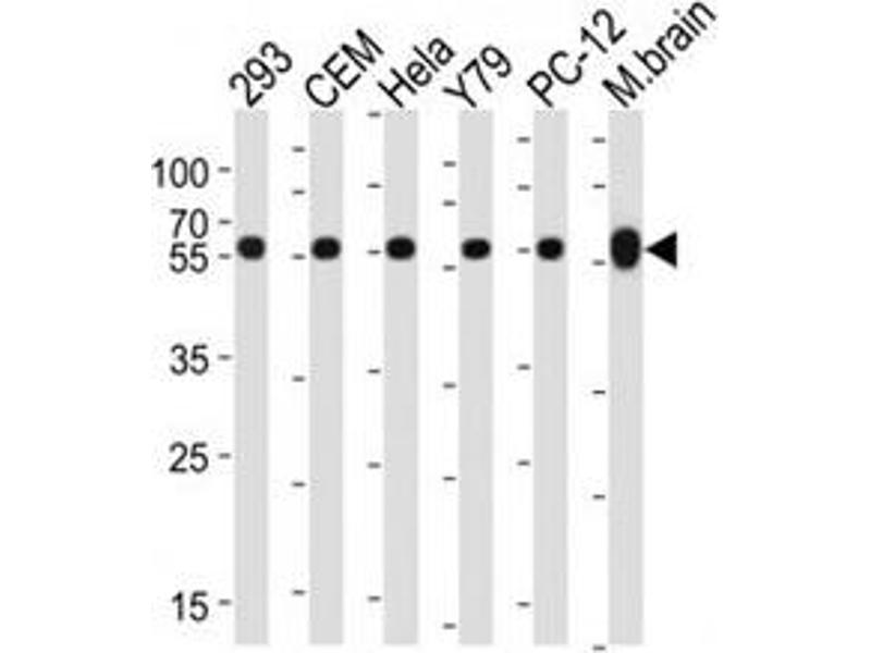Western Blotting (WB) image for anti-Tubulin, beta 1 (TUBB1) antibody (ABIN3029340)