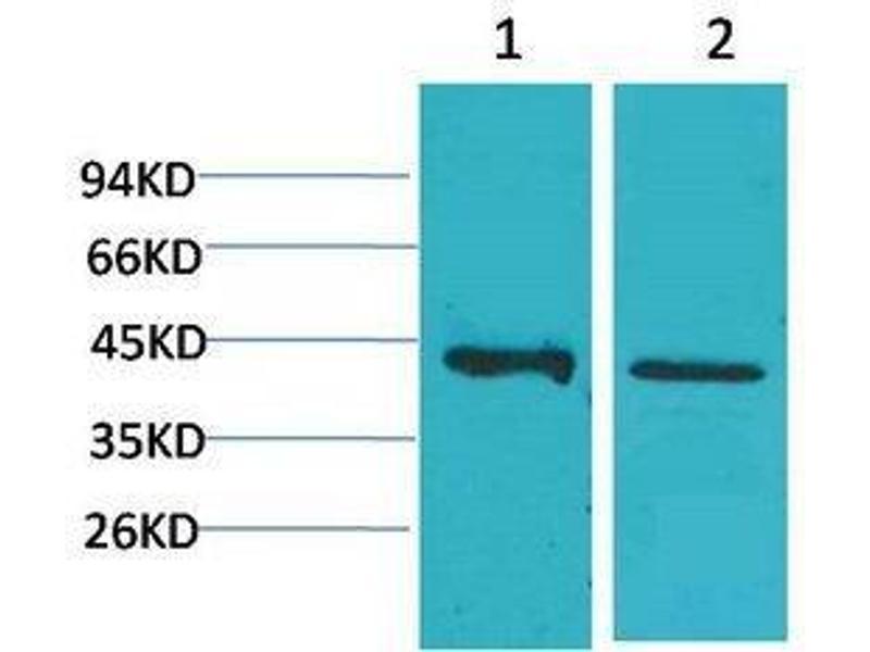 Western Blotting (WB) image for anti-Calcium Homeostasis Modulator 1 (CALHM1) antibody (ABIN3181545)