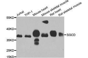 Image no. 3 for anti-Sarcoglycan, delta (35kDa Dystrophin-Associated Glycoprotein) (SGCD) antibody (ABIN2559903)