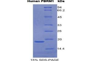 Image no. 1 for Polybromo 1 (PBRM1) protein (ABIN3011256)