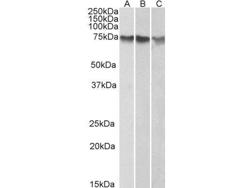 Western Blotting (WB) image for anti-ATF2 antibody (Activating Transcription Factor 2) (C-Term) (ABIN2561259)