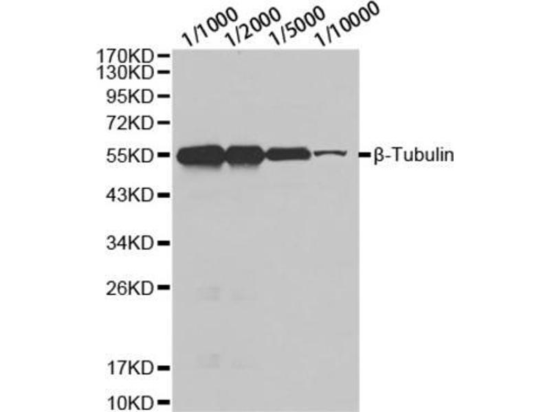 Western Blotting (WB) image for anti-Tubulin, beta (TUBB) antibody (ABIN2970878)