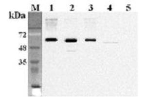 Image no. 2 for anti-Fat Mass and Obesity-Associated (FTO) antibody (ABIN1169081)