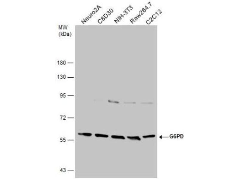Western Blotting (WB) image for anti-Glucose-6-Phosphate Dehydrogenase (G6PD) (Center) antibody (ABIN441335)