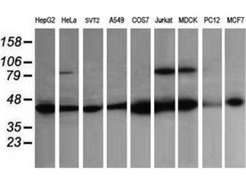 Image no. 2 for anti-Acetyl-CoA Acyltransferase 2 (ACAA2) antibody (ABIN2715630)