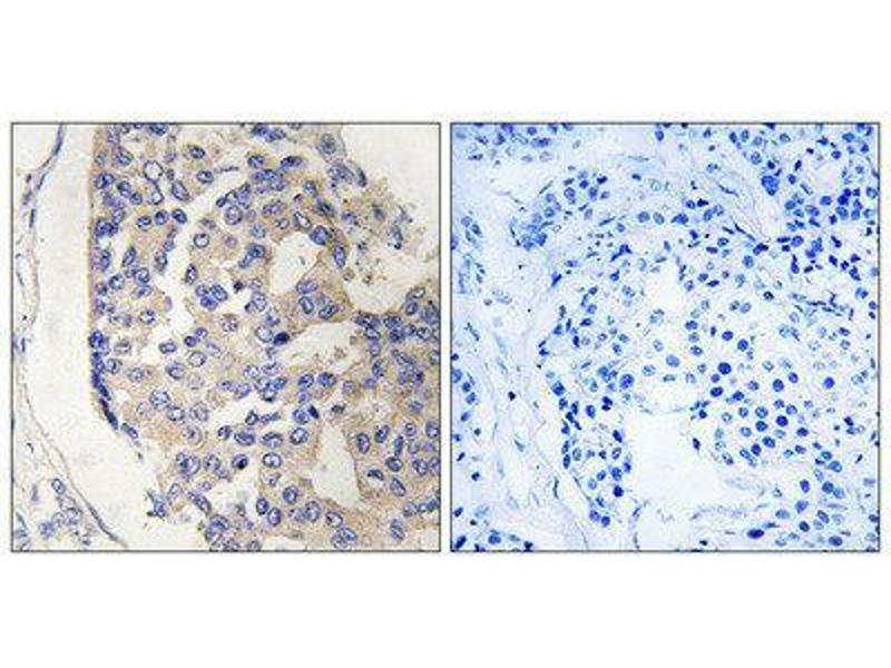 Immunohistochemistry (IHC) image for anti-Complement Component 1, S Subcomponent (C1S) (C-Term) antibody (ABIN1851152)