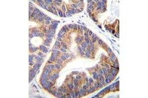Image no. 1 for anti-Family with Sequence Similarity 109, Member A (FAM109A) (AA 10-39), (N-Term) antibody (ABIN952171)