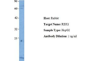 Image no. 1 for anti-Ring-Box 1, E3 Ubiquitin Protein Ligase (RBX1) (Middle Region) antibody (ABIN2792171)