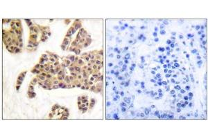 Image no. 4 for anti-BCL2-Associated Agonist of Cell Death (BAD) (pSer128), (pSer91) antibody (ABIN1847348)