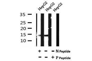 Image no. 1 for anti-Fatty Acid Binding Protein 1, Liver (FABP1) (pSer11) antibody (ABIN6269527)