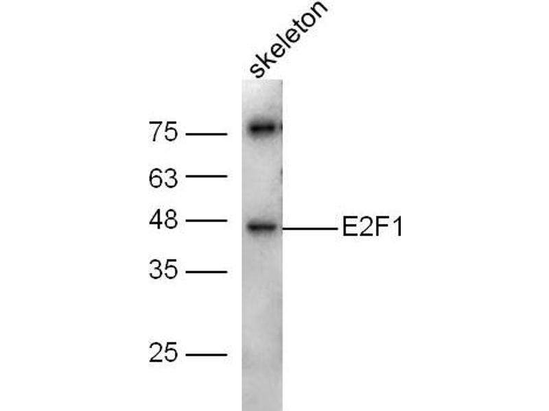 image for anti-E2F Transcription Factor 1 (E2F1) (AA 105-135) antibody (ABIN670686)
