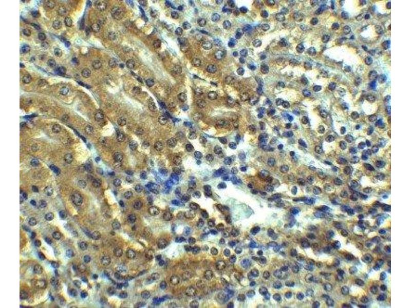 Immunohistochemistry (IHC) image for anti-Angiotensin II Receptor, Type 1 (AGTR1) (Center) antibody (ABIN4278728)