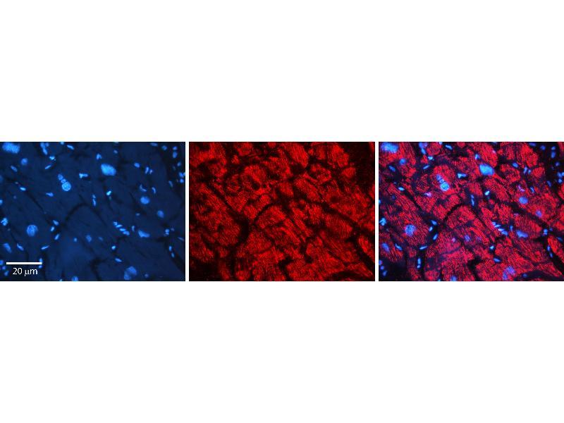 Immunohistochemistry (IHC) image for anti-Aldo-Keto Reductase Family 1, Member B1 (Aldose Reductase) (AKR1B1) (N-Term) antibody (ABIN2783262)
