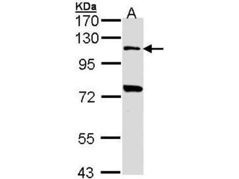 Western Blotting (WB) image for anti-Toll-Like Receptor 5 (TLR5) (N-Term) antibody (ABIN442323)