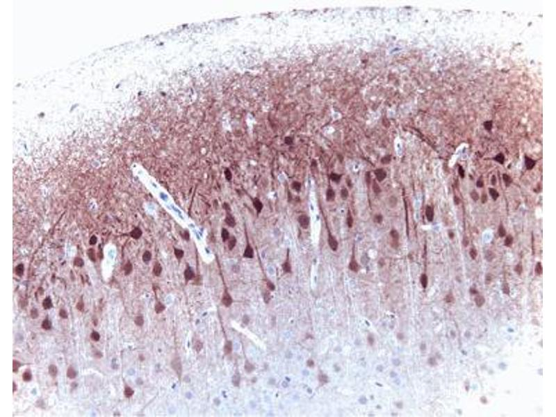 Immunohistochemistry (Paraffin-embedded Sections) (IHC (p)) image for anti-ERK2 Antikörper (Mitogen-Activated Protein Kinase 1) (AA 219-358) (ABIN967747)