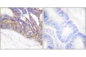 Immunohistochemistry (IHC) image for anti-Linker For Activation of T Cells (LAT) (AA 191-240), (pTyr191) antibody (ABIN1531336)